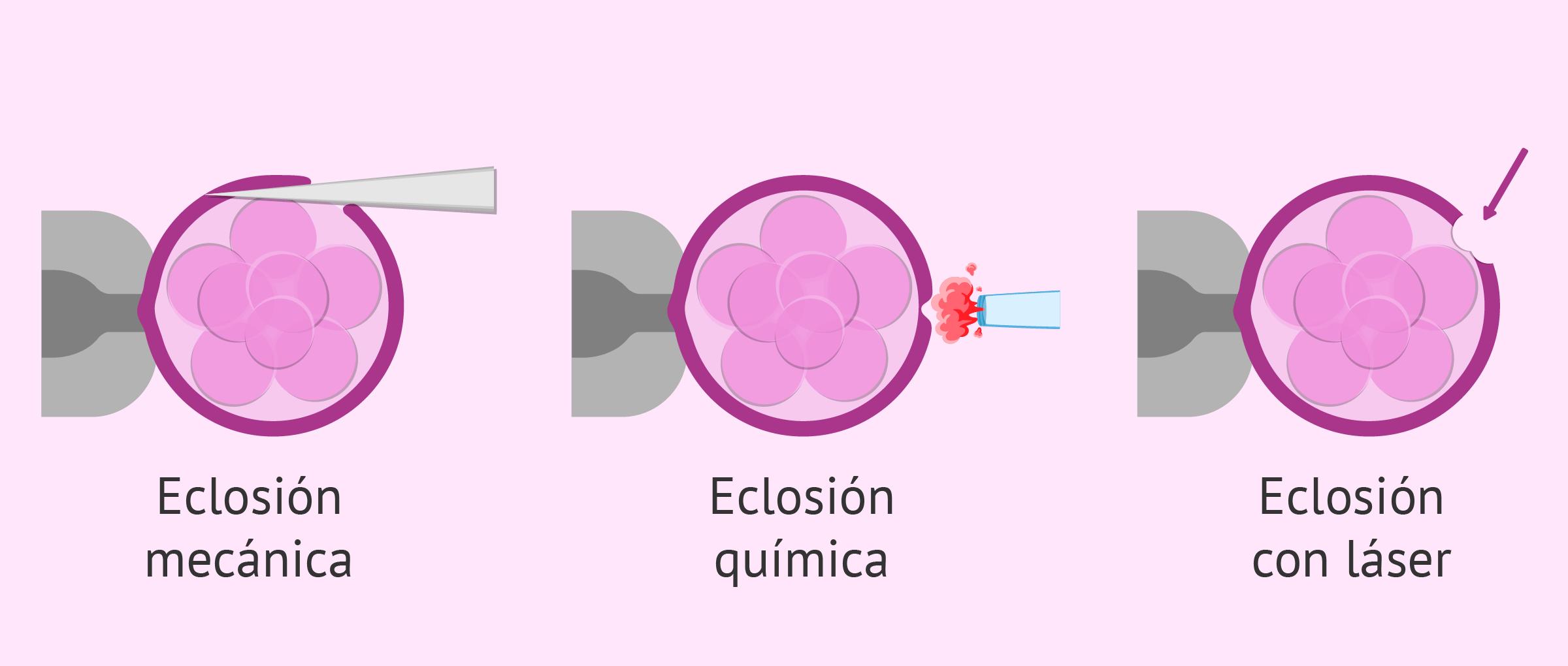 El hatching asistido antes de la transferencia embrionaria