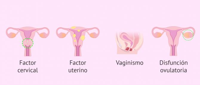 Imagen: Indicaciones de la IAC por esterilidad femenina