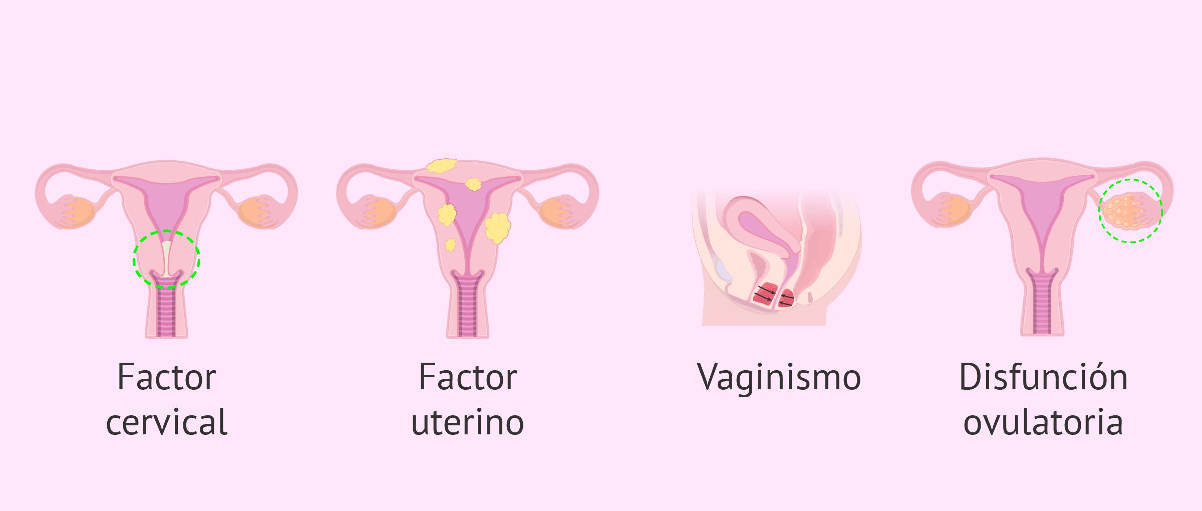 Indicaciones de la IAC por esterilidad femenina