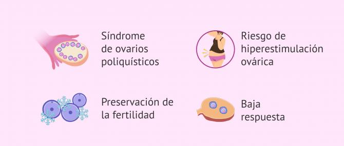 Imagen: Indicaciones de la maduración in vitro (IVM)