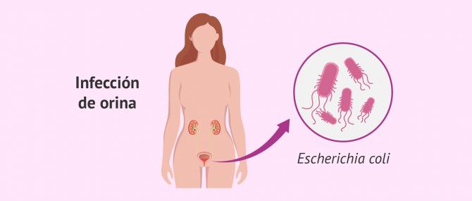 Imagen: Infección de orina causada por bacterias