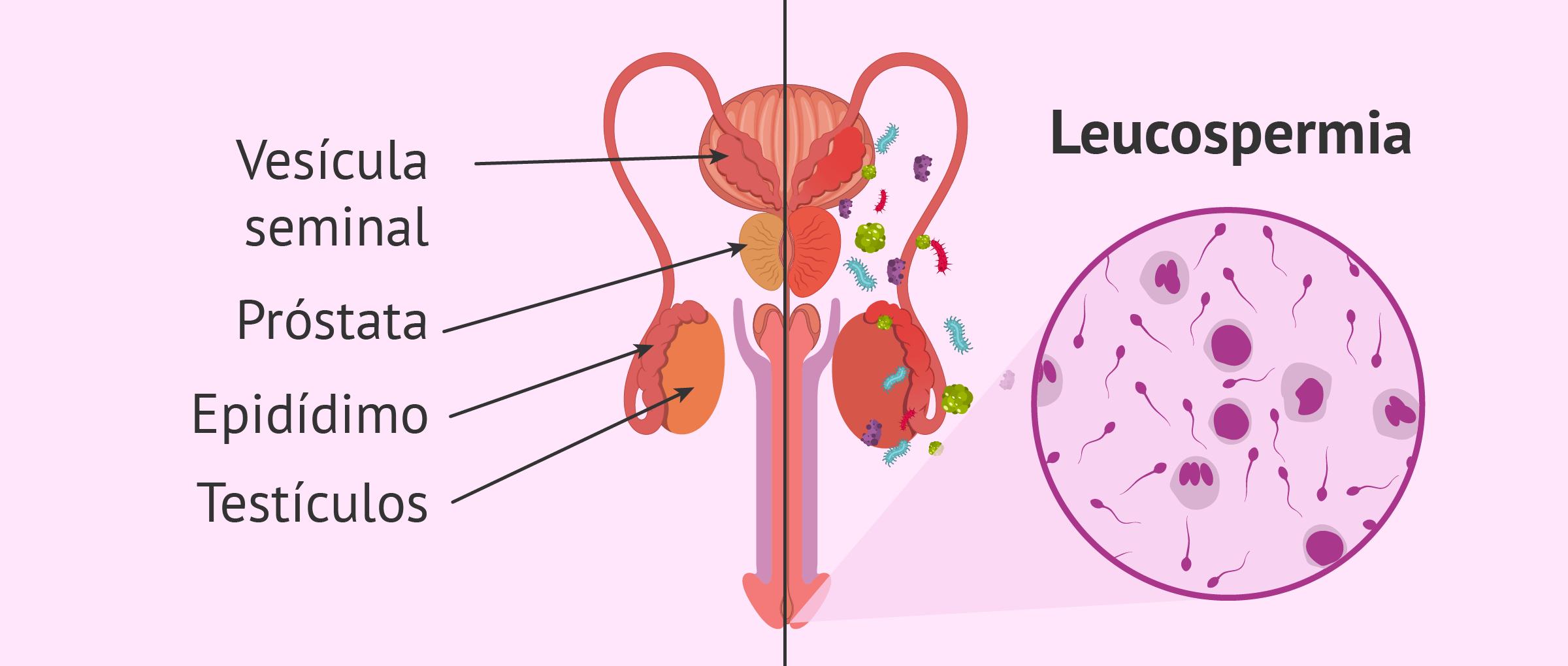 Infección del aparato reproductor masculino y leucospermia