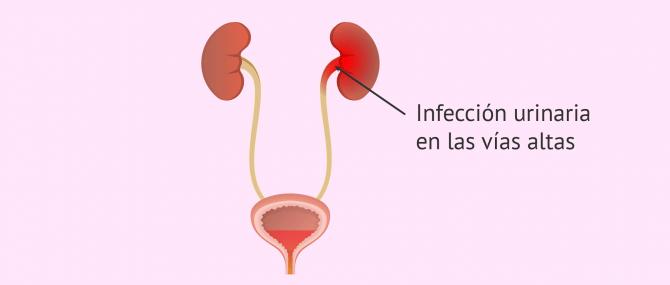 Imagen: Infección urinaria de las vías altas