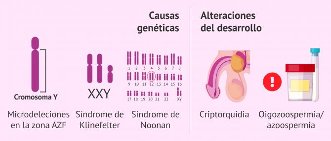 Imagen: infertilidad-masculina-por-factor-testicular-congenito
