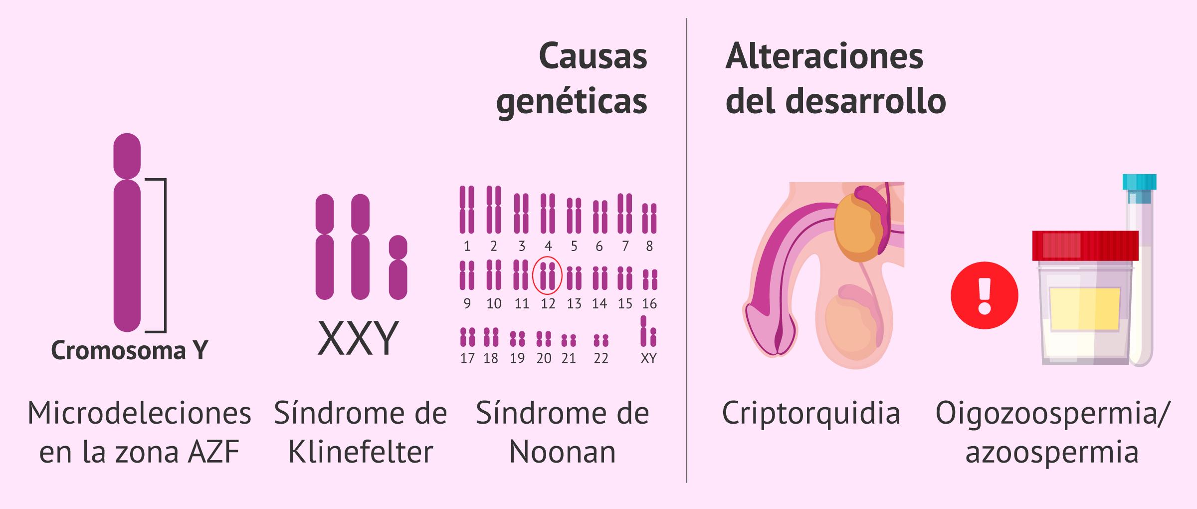 infertilidad-masculina-por-factor-testicular-congenito