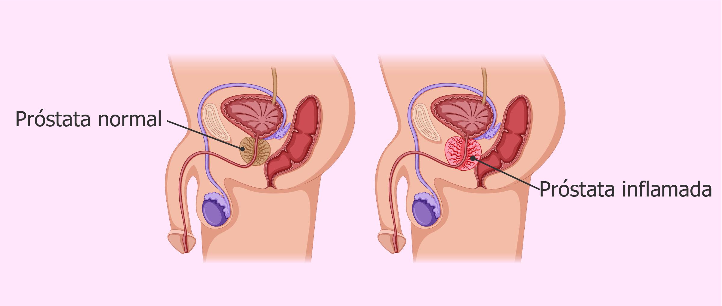 prostatitis crónica provoca actualización
