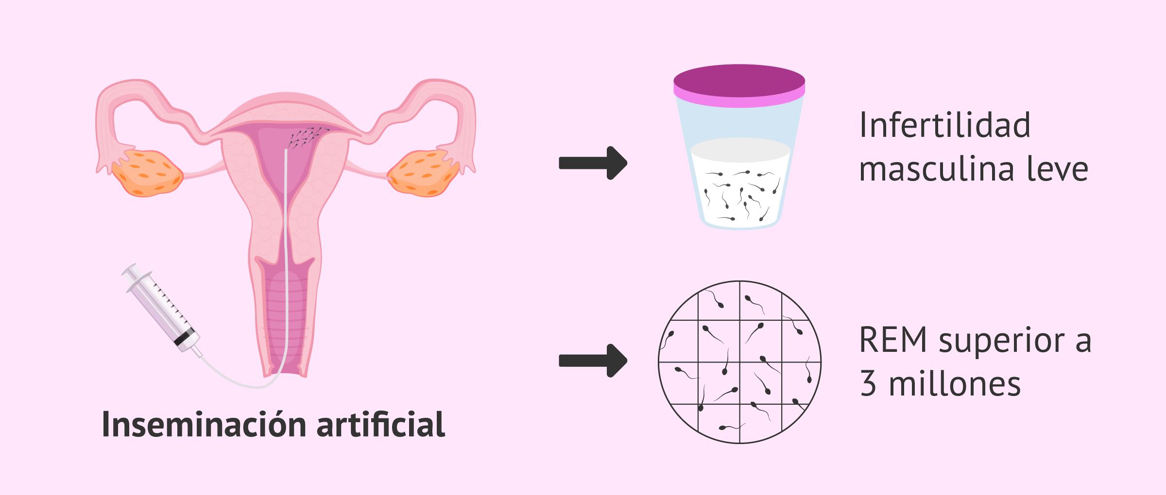 IA por infertilidad masculina