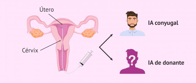 Imagen: Procedimiento de la inseminación artificial intrauterina