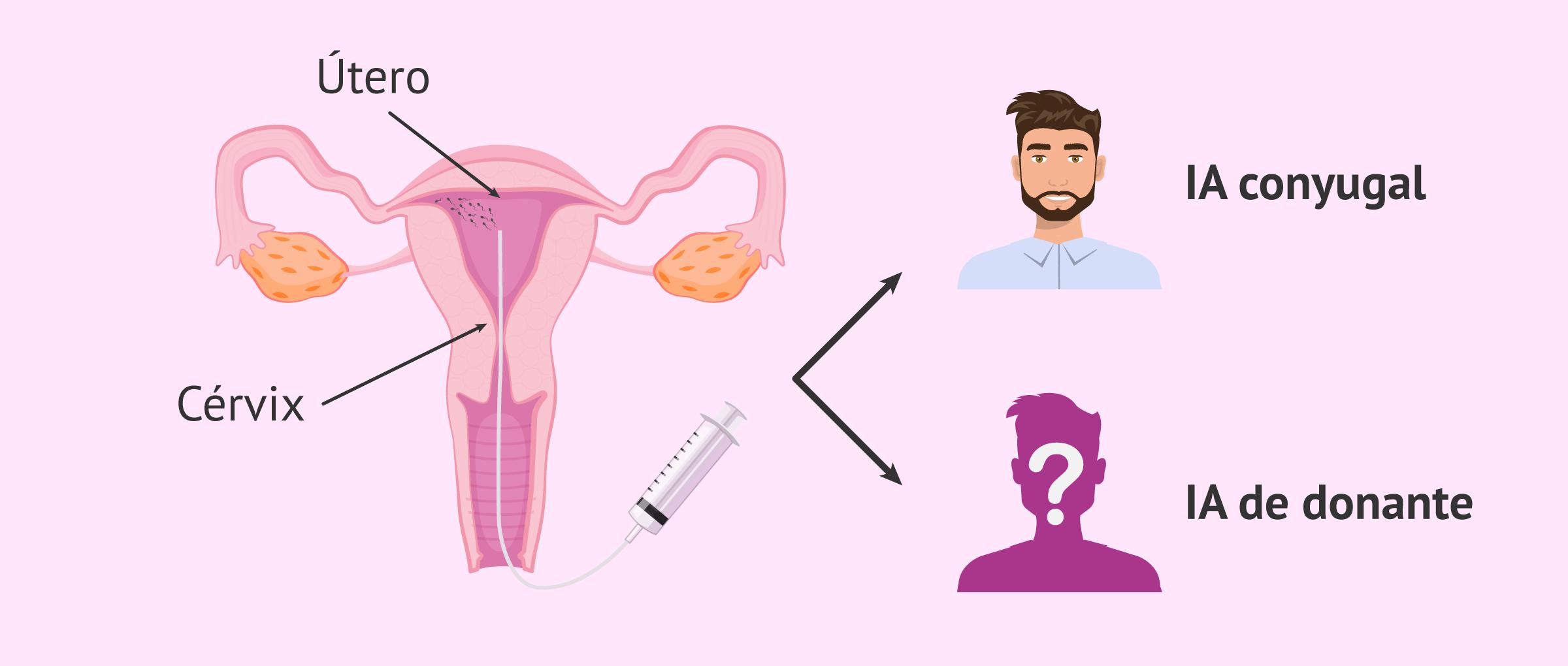 ¿Cuáles son las ventajas y desventajas de la inseminación artificial?
