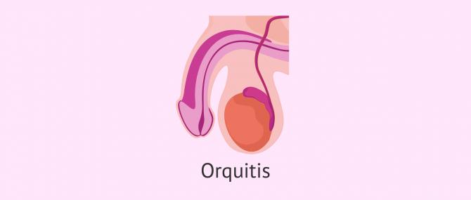 Imagen: La orquitis testicular
