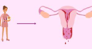 Menstruación tras dar a luz