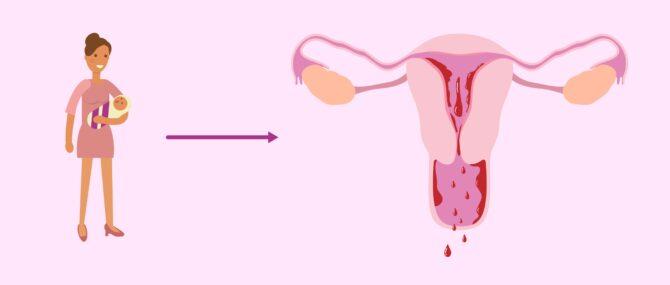Imagen: Menstruación tras dar a luz