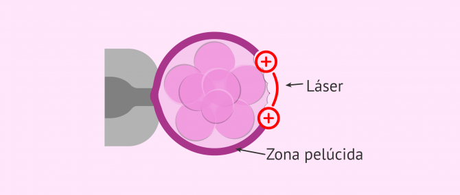 Imagen: Eclosión asistida por láser
