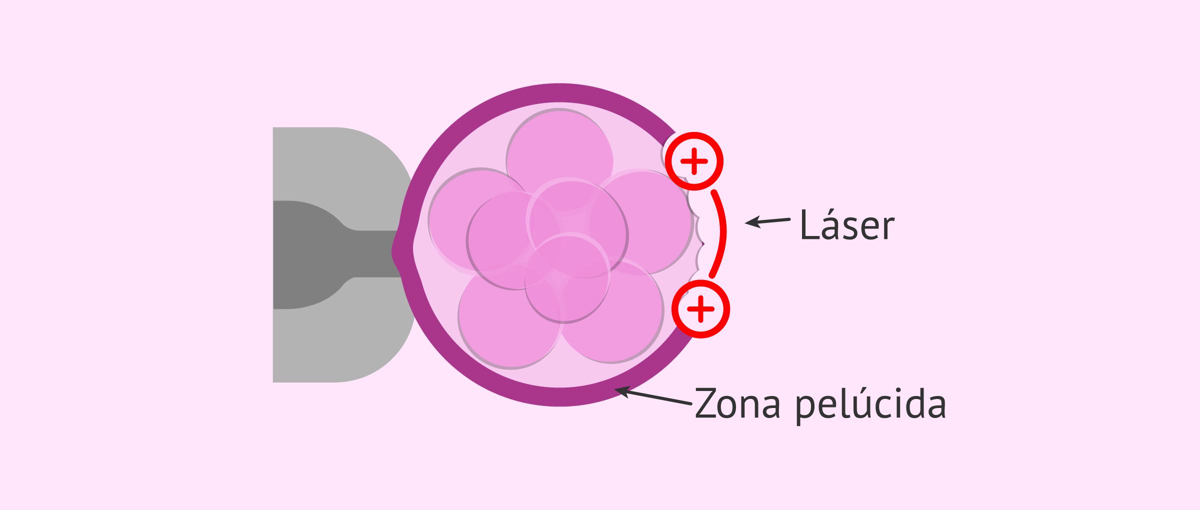 Eclosión asistida por láser
