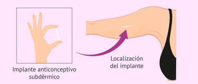 Imagen: Localización del implante anticonceptivo