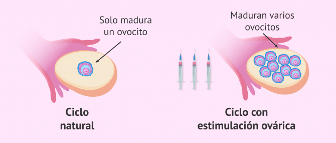 Imagen: Maduración de ovocitos natural vs. estimulada