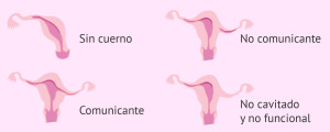 Alteraciones uterinas