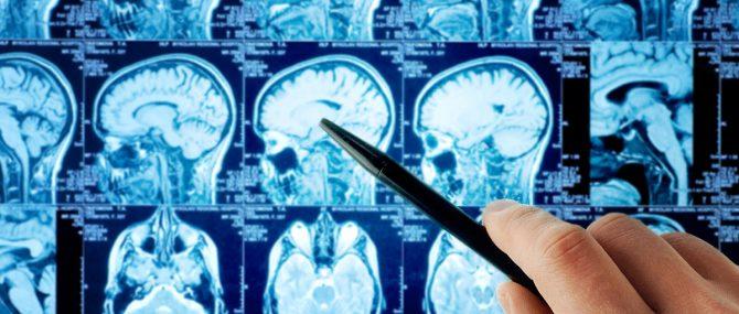 Nuevo estudio sobre epilepsia e infertilidad
