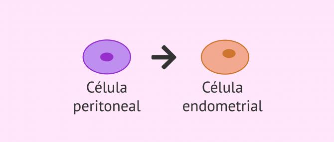 Imagen: Metaplasia celómica