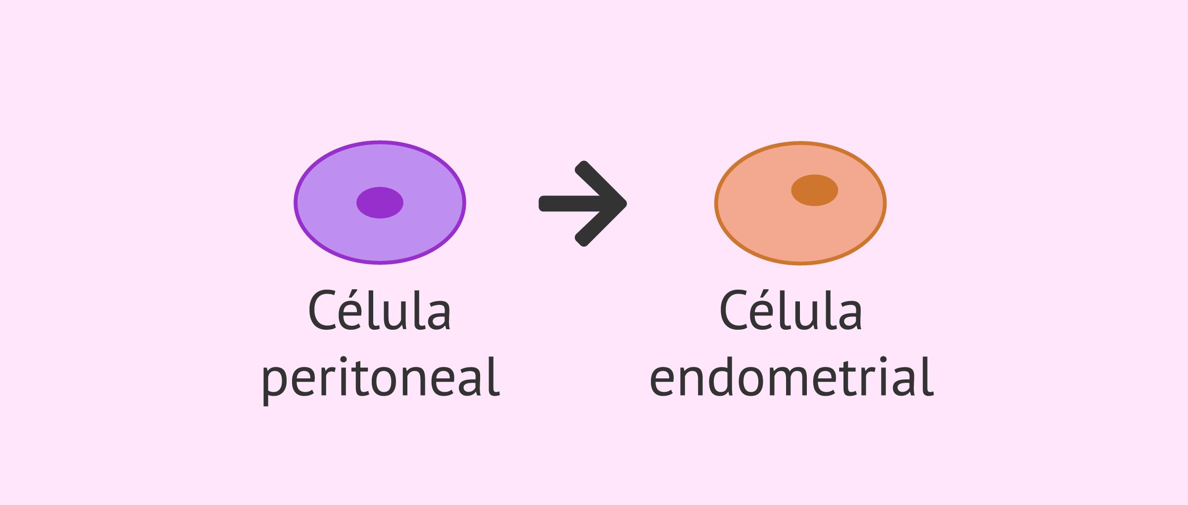 Metaplasia celómica