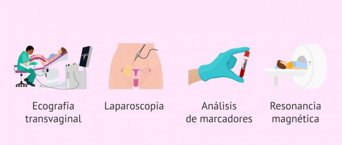 Imagen: metodos-diagnosticos-endometriosis
