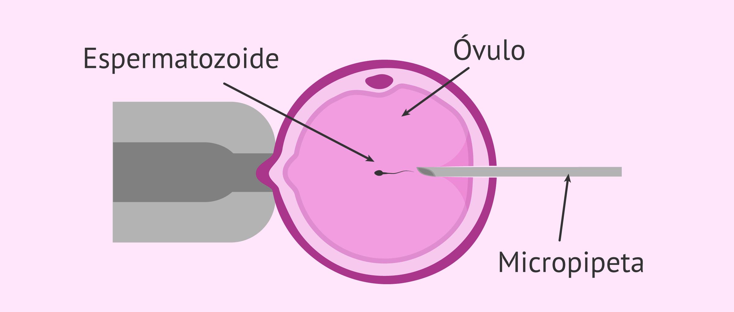 Inyección intracitoplásmica de espermatozoides (ICSI)