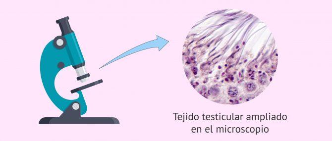 Imagen: Observación del tejido testicular al microscopio