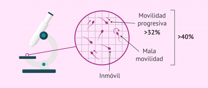 Imagen: Valores normales de movilidad espermática