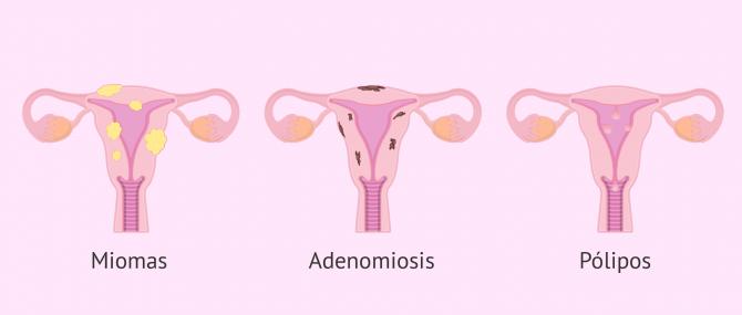 Imagen: Tumoraciones en el útero