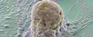 Detectar alteraciones cromosómicas