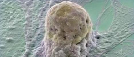 Morfología del blastocisto, anomalías cromosómicas y género del embrión