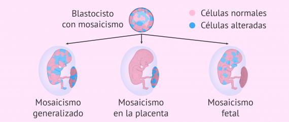 Imagen: Biopsia corial como control del embarazo
