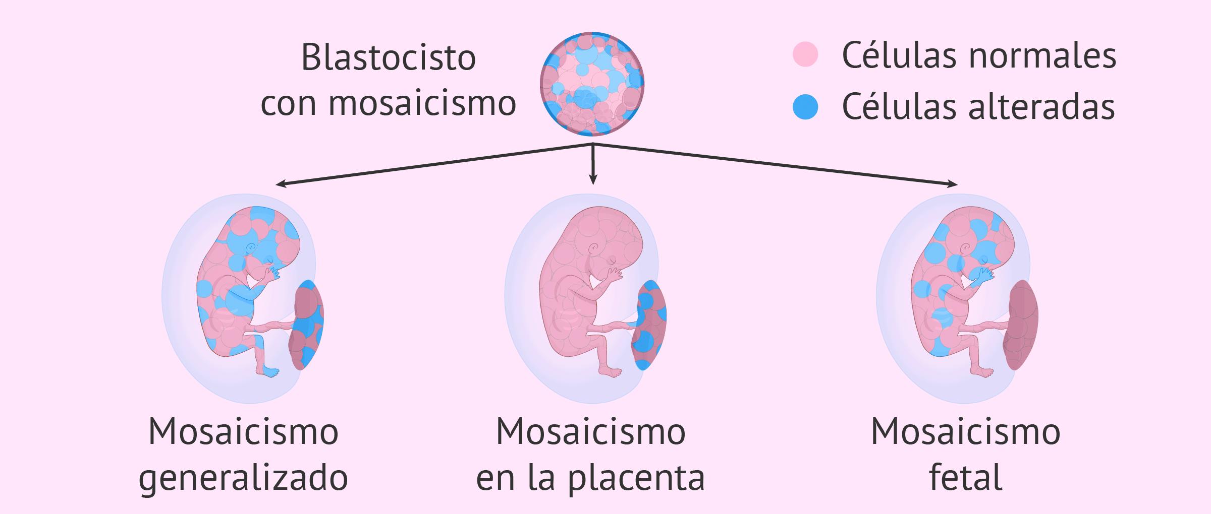 Mosaicismo confinado a la placenta