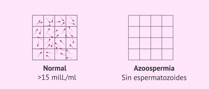 Imagen: Muestra de semen normal y muestra seminal con azoospermia