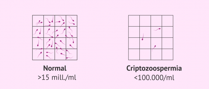 Imagen: Muestra seminal normal y muestra con criptozoospermia
