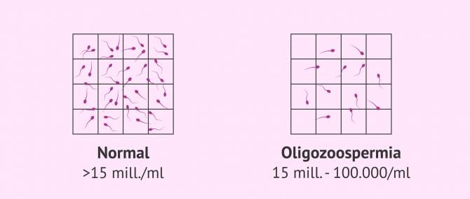Imagen: Muestra seminal normal y muestra oligozoospérmica