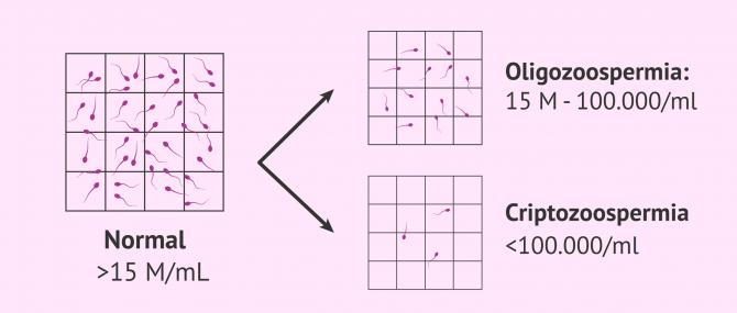 Imagen: Muestra seminal normal, oligozoospérmica y criptozoospérmica