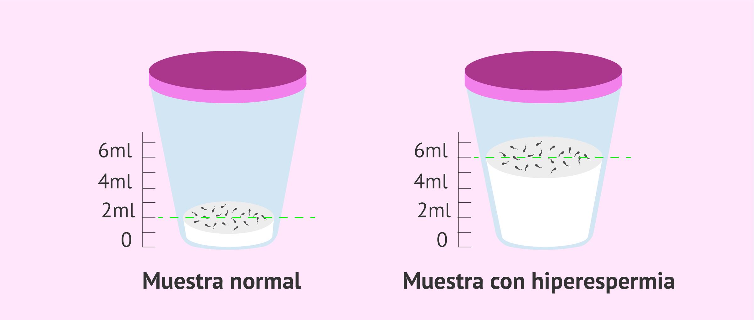 Muestra-semen_hiperespermia