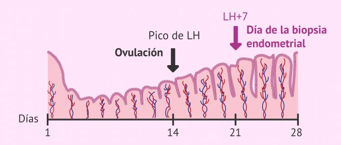 Imagen: Recolección del tejido endometrial