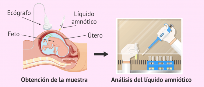 Técnicas de diagnóstico prenatal invasivas y no invasivas