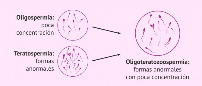 Imagen: Oligoteratozoospermia
