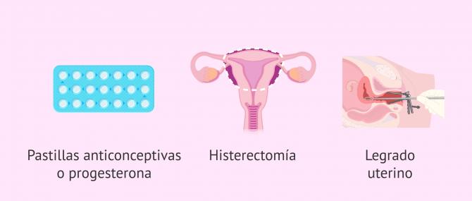 Imagen: Posibilidad de tratamientos para la hiperplasia endometrial