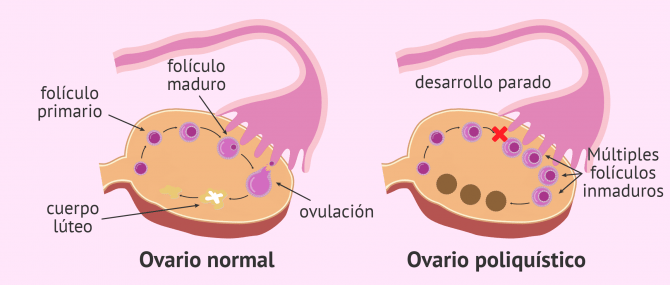 Imagen: Ovario normal vs. ovario poliquístico