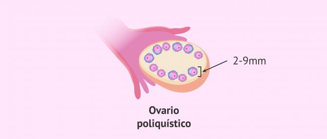 Imagen: ovario-poliquistico-tamano-foliculos