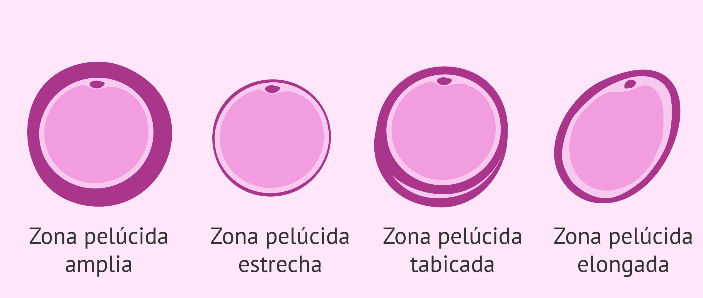 Alteraciones de la zona pelúcida en los ovocitos