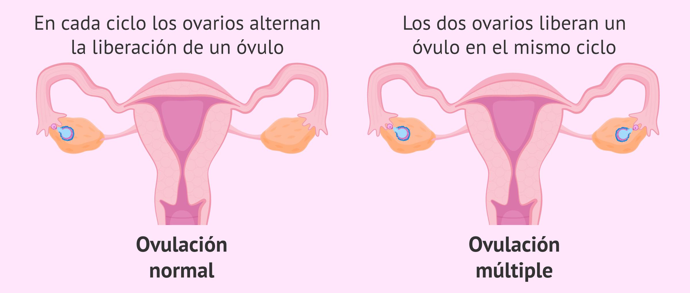 ¿Qué es la ovulación múltiple y cuáles son sus causas?