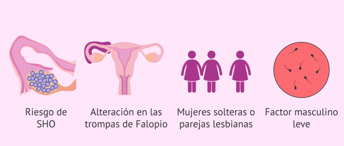 Imagen: Casos indicados para mini-FIV