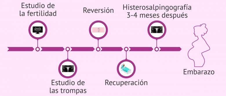 Imagen: Proceso del tratamiento reversión de la ligadura de trompas