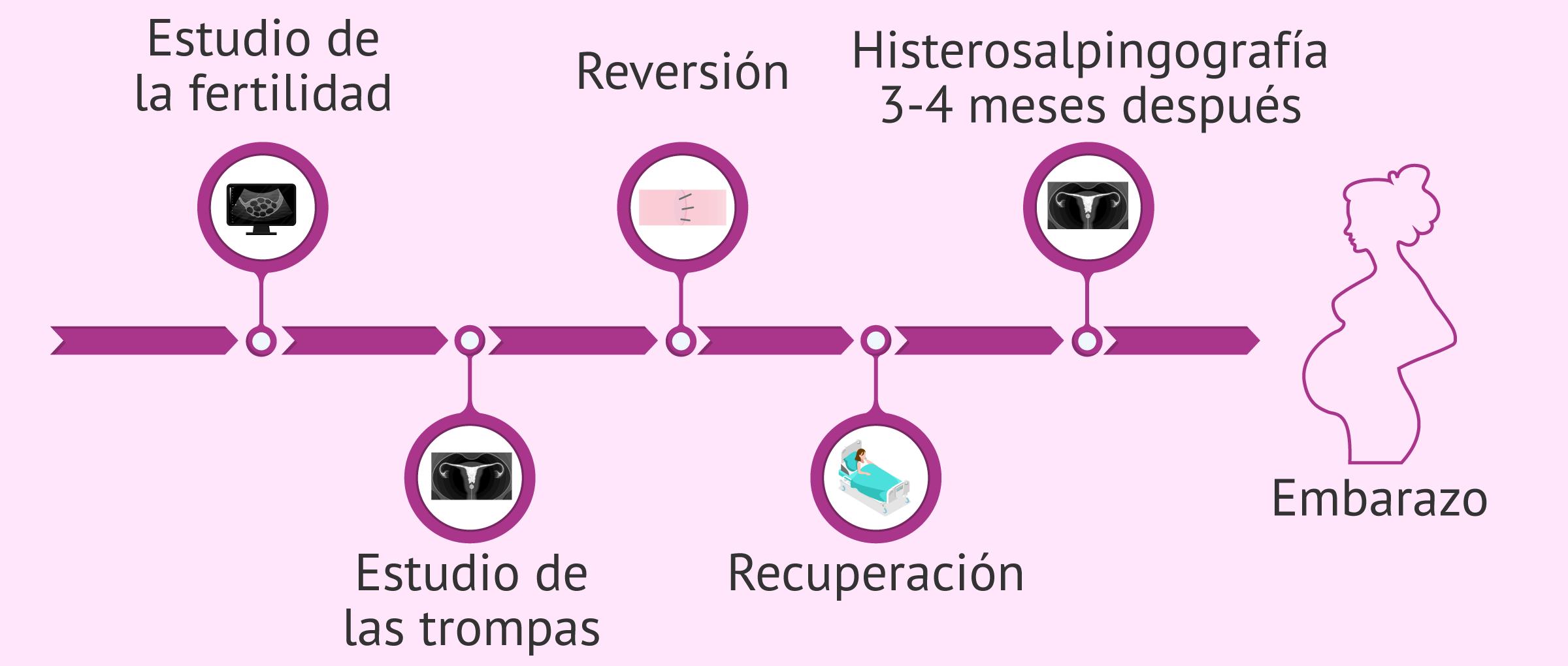 Proceso del tratamiento reversión de la ligadura de trompas