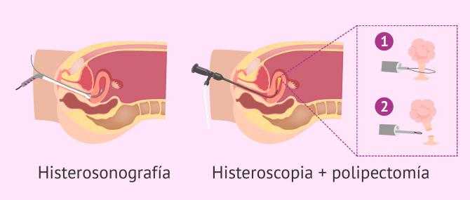 Imagen: Diagnóstico de los pólipos uterinos y polipectomía